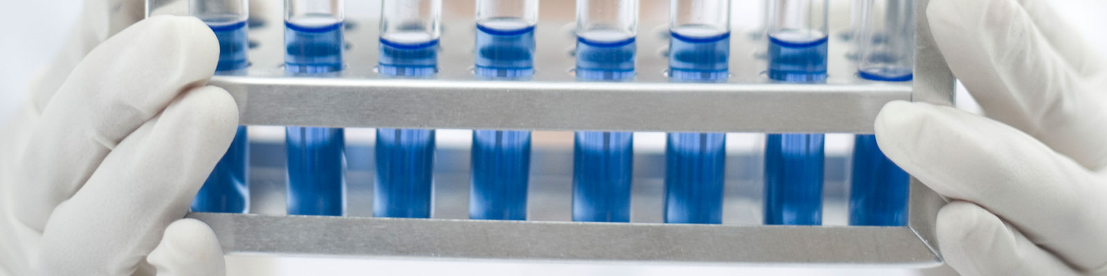 gloved hands holding a rack of test tubes with blue liquid
